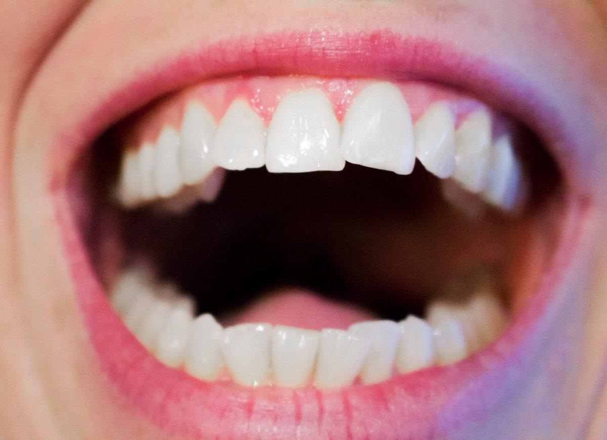 Aktualna technologia wykorzystywana w salonach stomatologii estetycznej być może sprawić, że odbierzemy prześliczny uśmieszek.